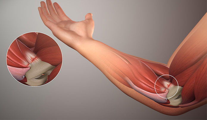 Causes of golfer's elbow